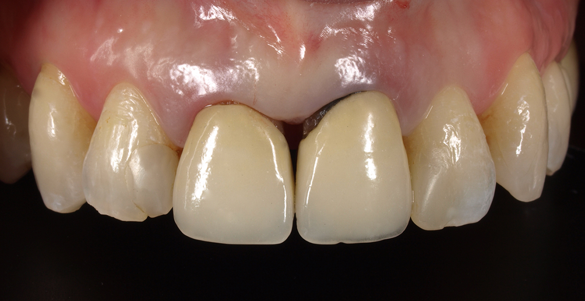 BOPT Technique case study image 1